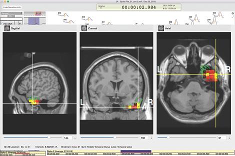 GeoSource 2 clinical ESI software EEG source imaging software