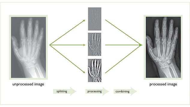 Imágenes de diagnóstico de calidad uniforme