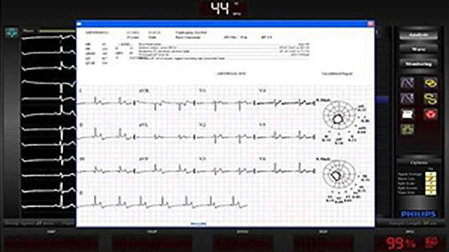 Proven ECG technology - Assess patient status during procedure