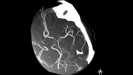 Treating more ischemic stroke patients with X-ray interventions