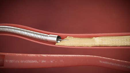 Implantierbarkeit