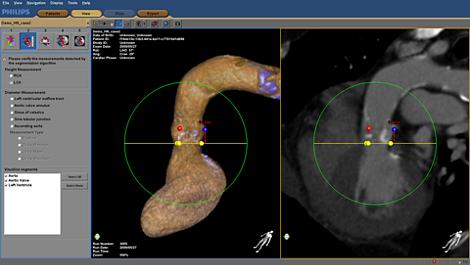 HeartNavigator Планирование и навигация при установке аортального клапана