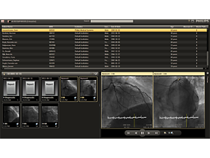 Xcelera Программа просмотра Cardiology Enterprise Viewer