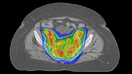 MRI as primary image set in treatment planning