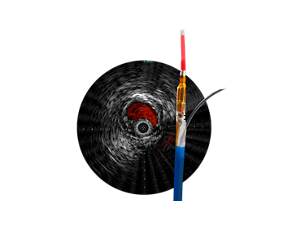 Pioneer Plus IVUS-guided re-entry catheter