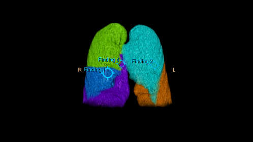 0fae97890dd Clinical Image Philips IntelliSpace Portal 9.0 All your advanced analysis  needs one comprehensive solution