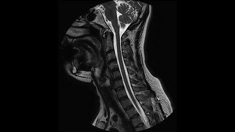 MultiVaneXD Клиническое приложение для МР-исследований