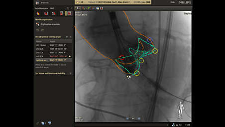 Integrated live image guidance supports precise navigation
