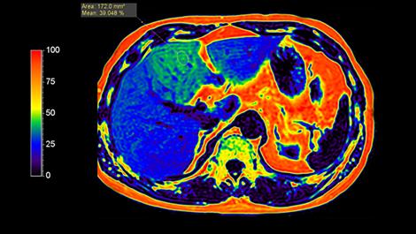 mDIXONQuant Клиническое приложение для МР-исследований