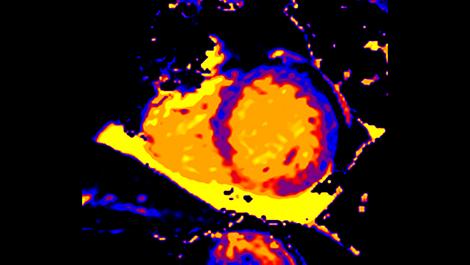 CardiacQuant Клиническое приложение для МР-исследований