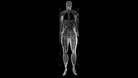 mDIXONXDFFEMultiStation Клиническое приложение для МР-исследований