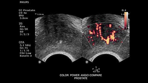cirugía de próstata en verona parte 1