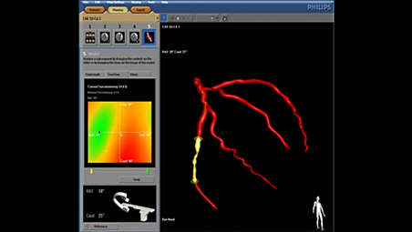3D coronary model to choose most beneficial viewing angle