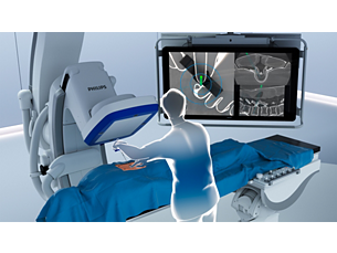 ClarifEye Augmented reality surgical navigation solution
