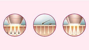 Professionele IPL-technologie voor thuis, ontwikkeld in samenwerking met dermatologen