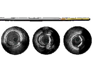 Refinity Short-tip rotational IVUS catheter