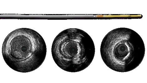Refinity Rotations-IVUS-Katheter mit kurzer Spitze