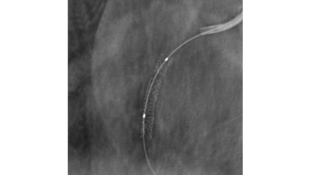 StentBoost enhances stent visualization.