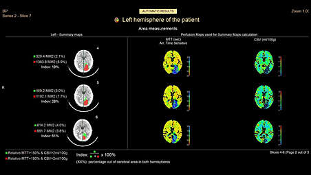 Zero-click automated stroke assessment workflow and result sharing​