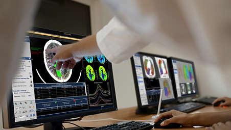 Assistenza avanzata per l'organo più complesso del corpo umano