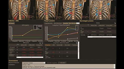 IntelliSpace Portal 9 0 | Radiology and cardiology