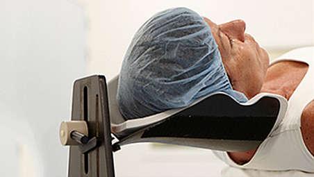 Soporte para la cabeza para intervenciones de Neuro:menos repeticiones para pacientes inquietos