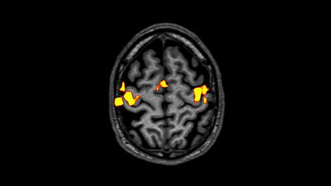 BOLD Клиническое приложение для МР-исследований
