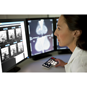 IntelliSpace PACS Mammography workstation