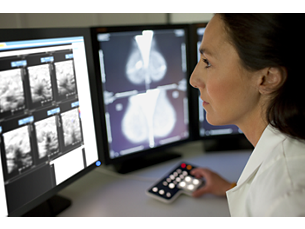 IntelliSpace Radiology con Advanced Mammography Mamografía diagnóstica