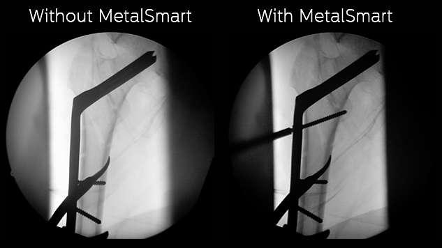 MetalSmart: exclusión automática de los artefactos metálicos