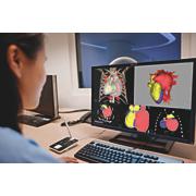 IntelliSpace Portal Advanced Visualisation