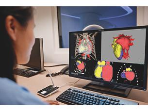 IntelliSpacePortal Экспертный анализ медицинских изображений