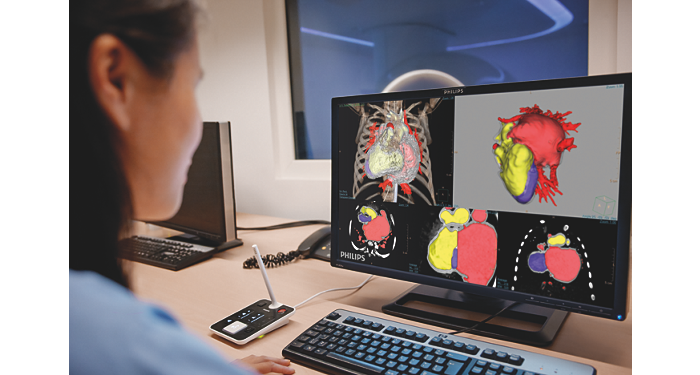 IntelliSpace Portal 10 Advanced Visualization