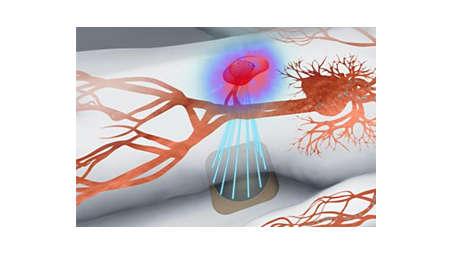 Гипертермия – это локальное нагревание тканей до 40 – 43°C
