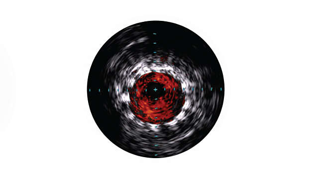IVUS helps confirm treatment results