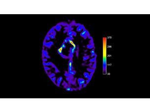 pCASL Клиническое приложение для МР-исследований