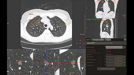 AI-based lung nodule detection