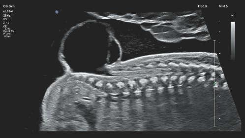 Philips - EPIQ 7 Ultraschallsystem für die Radiologie